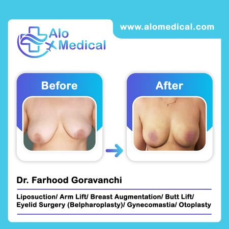 Breast Augmentation In Iran Cost Reviews Clinics Alomedical