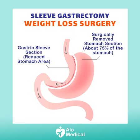 Gastric-sleeve-surgery-infographic-animation
