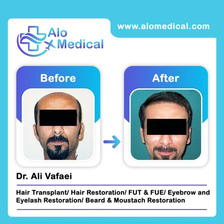 Hair-transplant-before-and-after-results-for-men