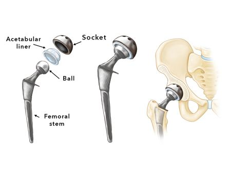 Hip replacement- implant components