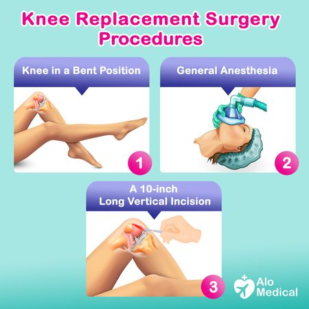 Knee Replacement Surgery - procedure - steps