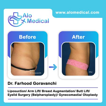 Liposuction-surgery-before-and-after-surgery-results-hips