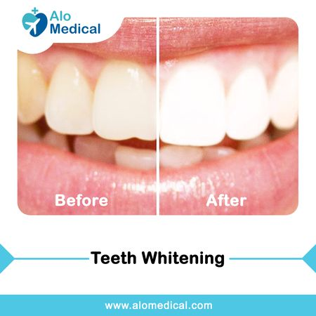 teeth-whitening-bleaching-results-before-and-after