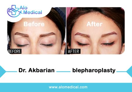 Eyelid Surgery (Blepharoplasty) in Iran - Best Hospitals