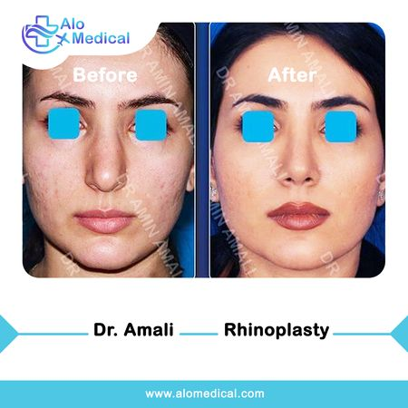 Rhinoplasty-Before and After-nosejob