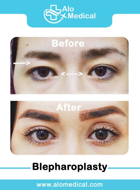 Blepharoplasty (Four Eyelids)