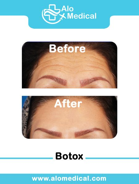 botox-before-and-after-forehead-eyebrows