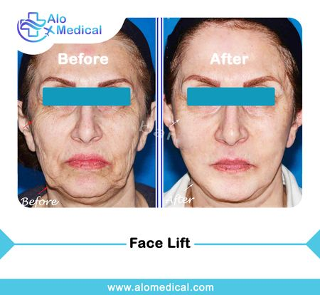 face-lift-before-and-after-necklift