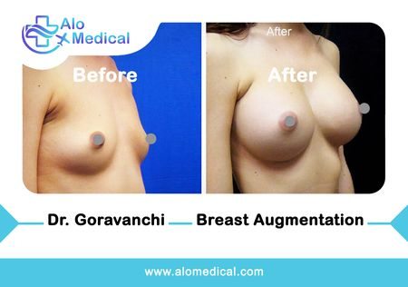 breast-augmentation-surgery-before-and-after
