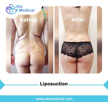 Vaser Liposuction abroad | Painless, Low cost & risk